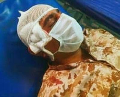 مجروحیت نیروی بسیجی حراست نفت و گاز مارون توسط سارقان مسلح
